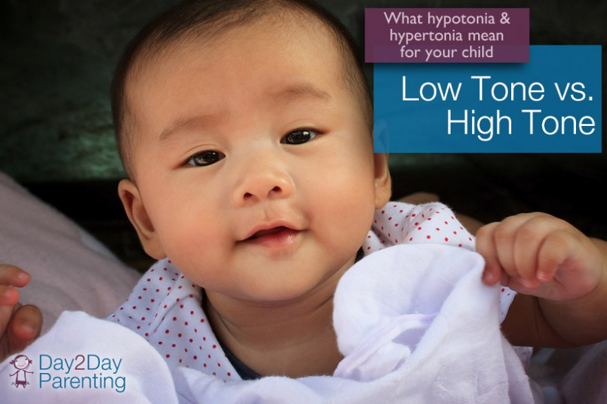 hypertonia in infants