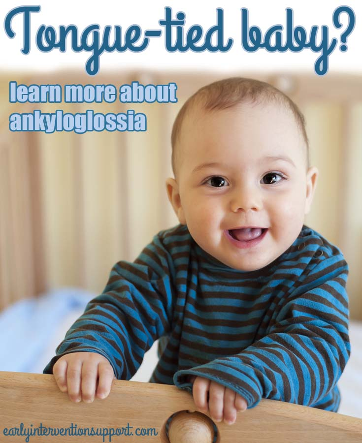 ankyloglossia or tongue tied child